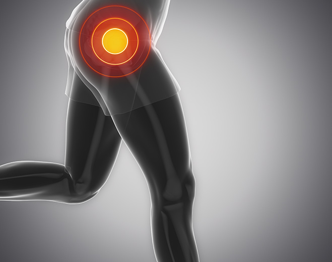 Orthopedics-Hip-Joint-Pain-Relief